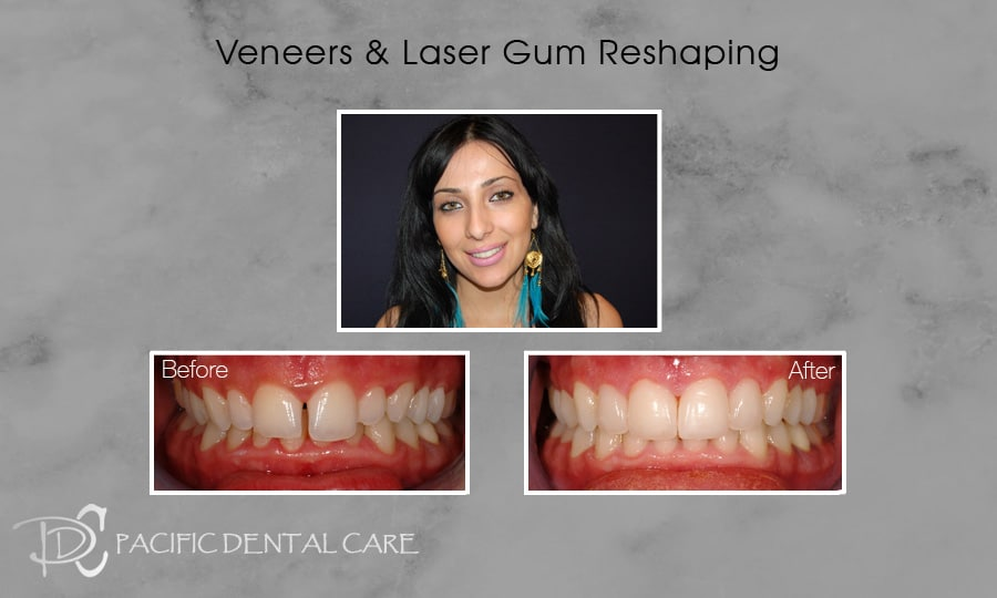PDC Veneers Lumineers1