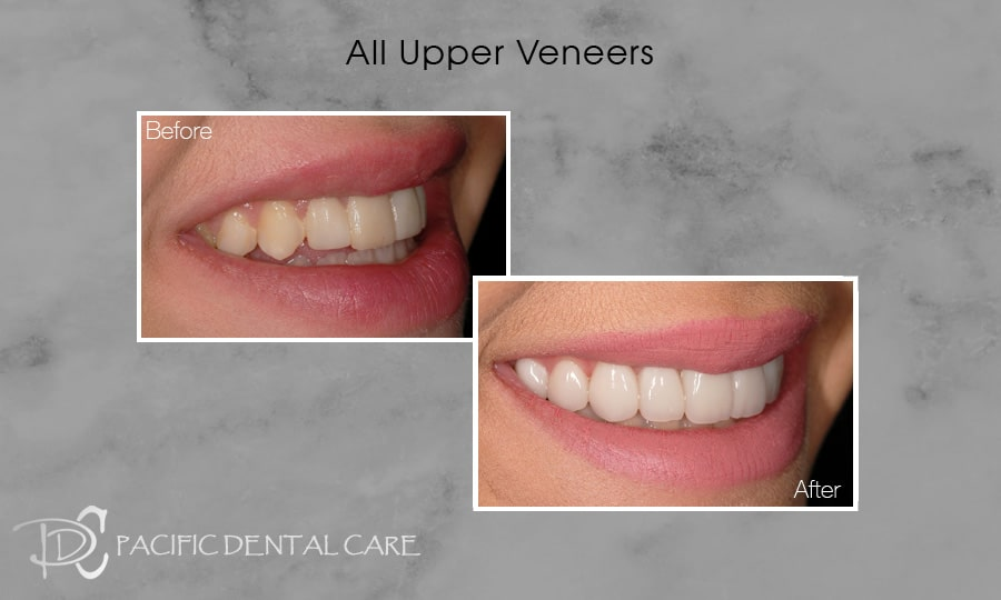 PDC Veneers Lumineers10