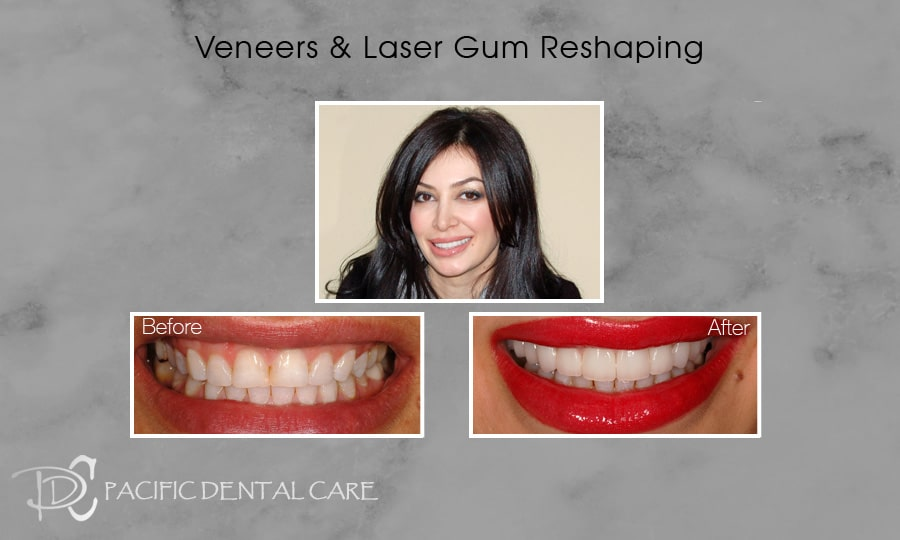 PDC Veneers Lumineers2