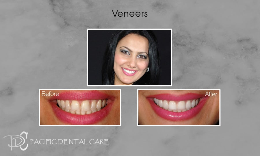 PDC Veneers Lumineers3