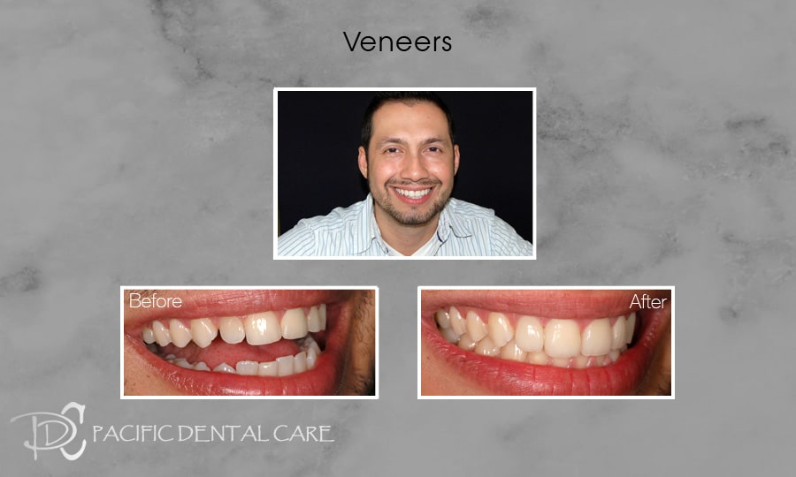 PDC Veneers Lumineers4