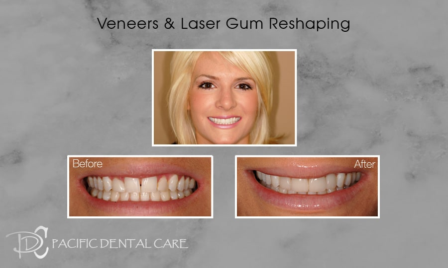 PDC Veneers Lumineers5