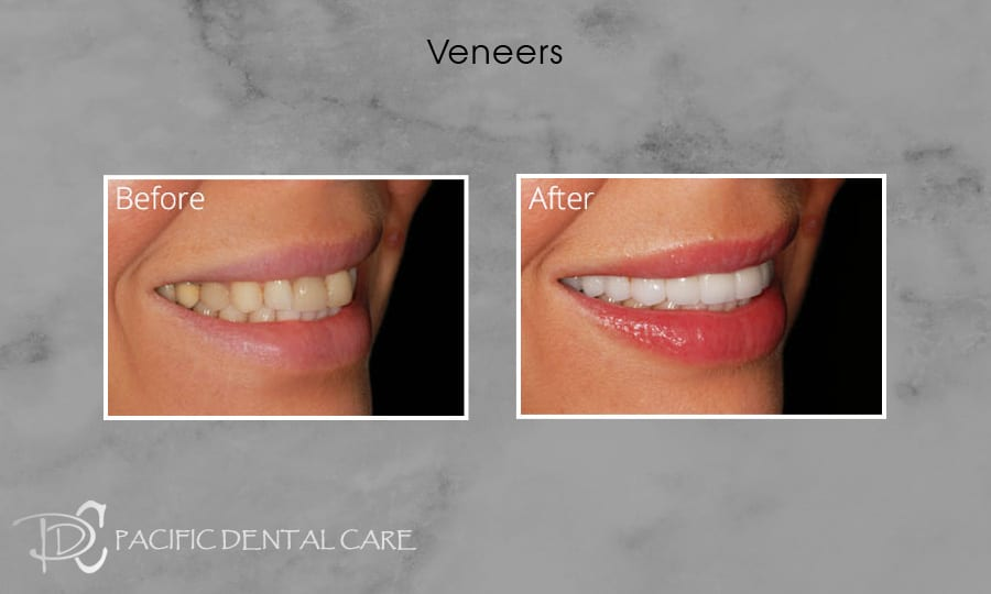 PDC Veneers Lumineers6