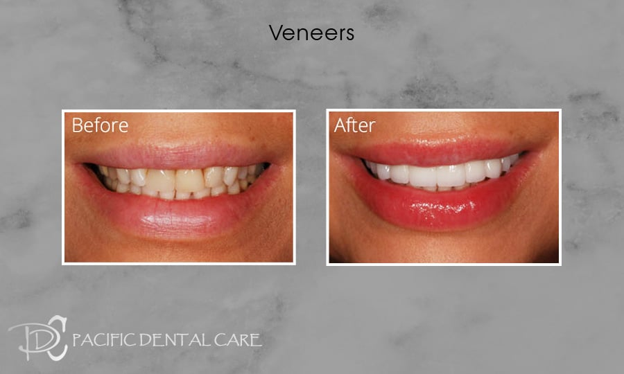 PDC Veneers Lumineers7