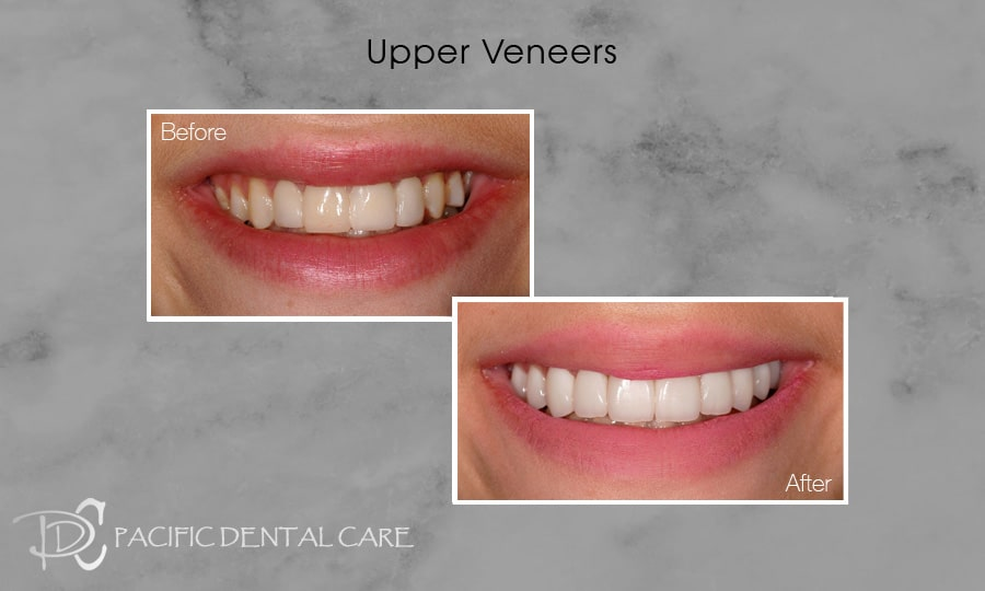 PDC Veneers Lumineers8