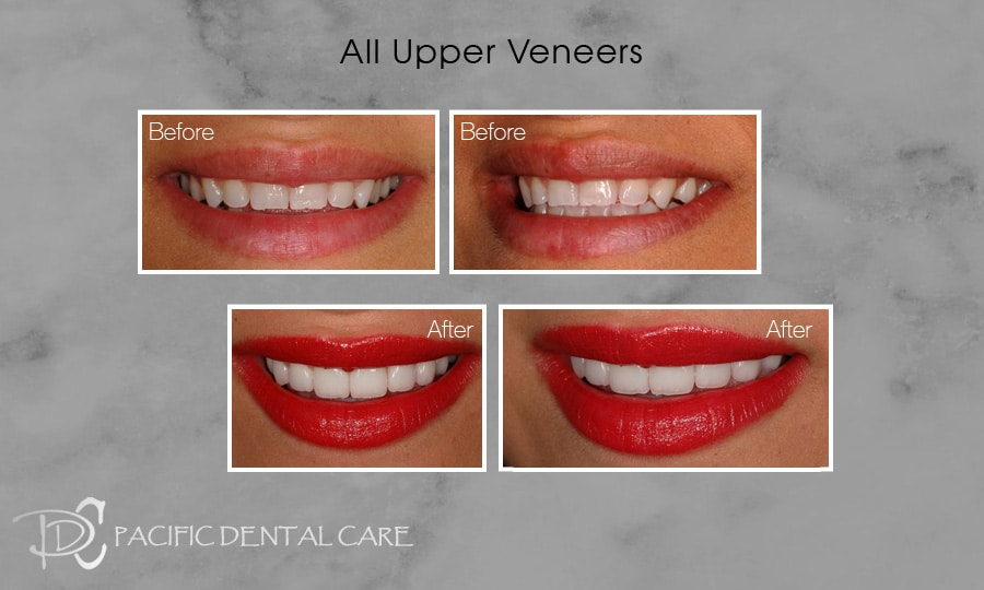 PDC Veneers Lumineers9