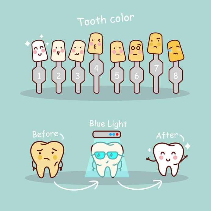 teeth-bleaching