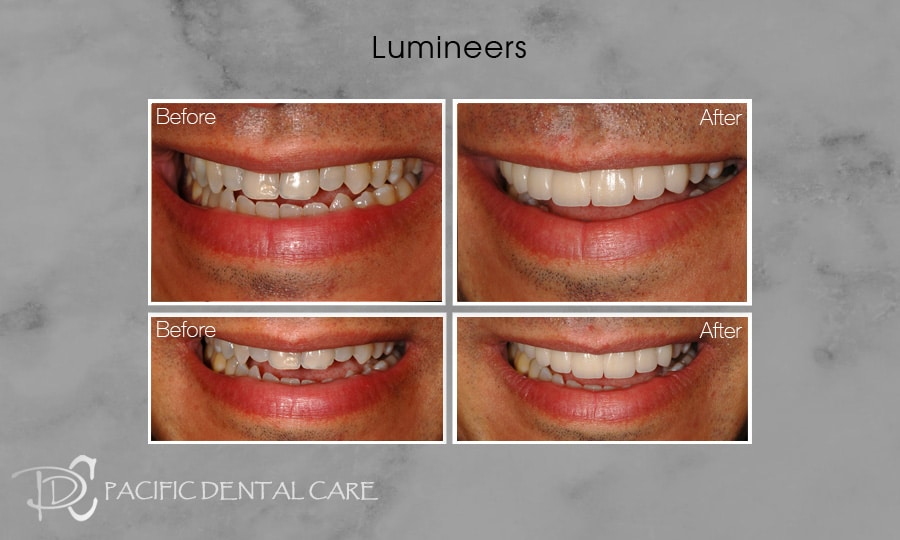 PDC-Veneers-Lumineers12