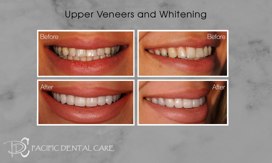PDC-Veneers-Lumineers14