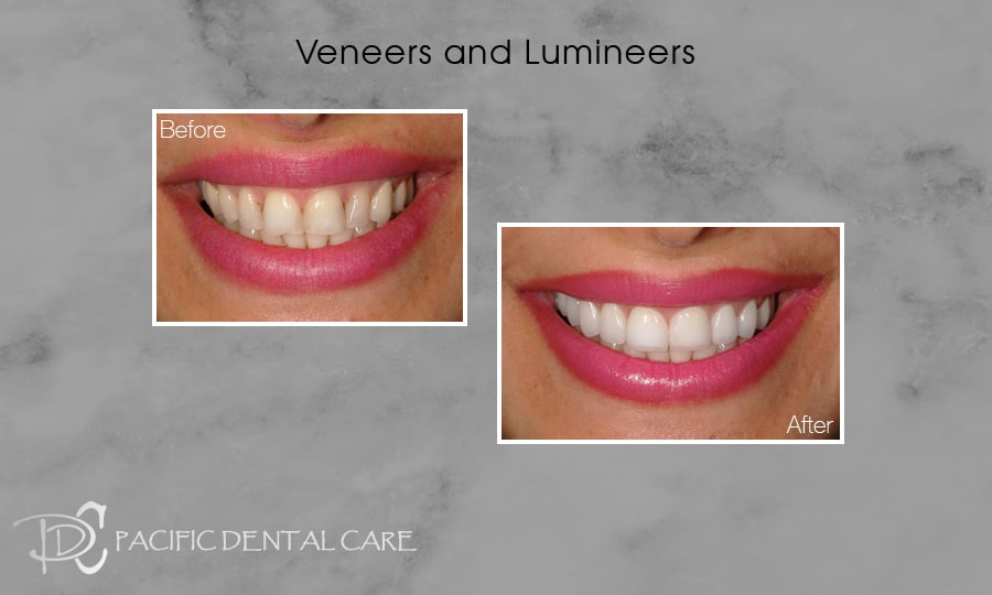 PDC-Veneers-Lumineers15