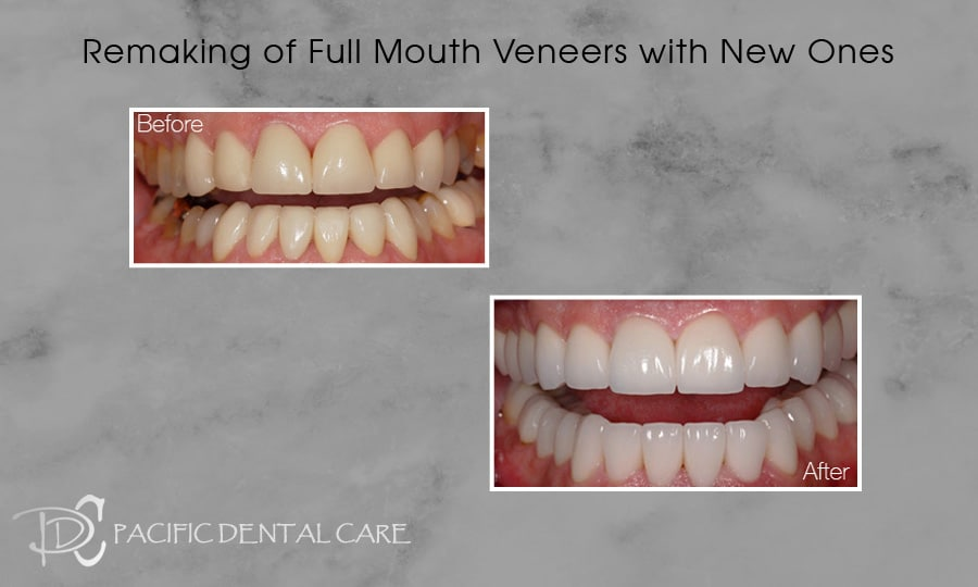 PDC-Veneers-Lumineers16-1