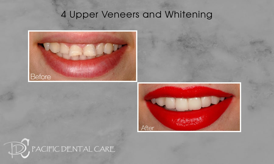 PDC-Veneers-Lumineers17