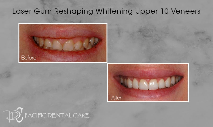 PDC-Veneers-Lumineers20
