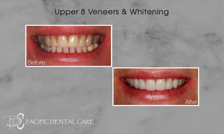 PDC-Veneers-Lumineers22