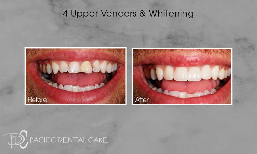 PDC-Veneers-Lumineers27