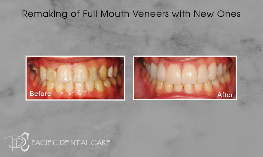 Veneers-and-Laser-Gum-Reshaping-1-1