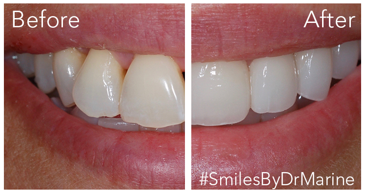 before and after veneers by dr marine (2)